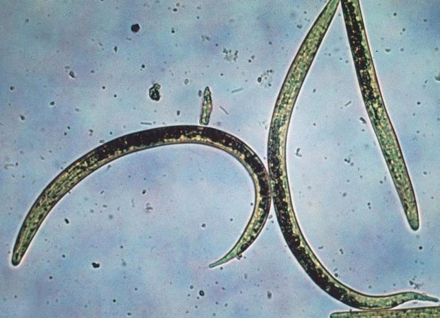 Lutte biologique : des nématodes auxiliaires pour détruire les ravageurs