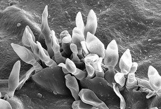 Spores de champignon (Venturia inaequalis - tavelure)